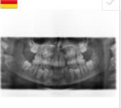 pediatryczna-panorama-rtg-orczyk-dentysta-jaworzno