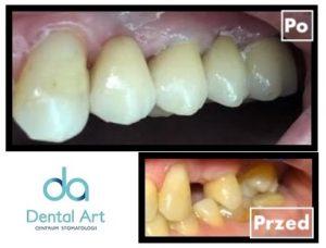 metamorfoza implanty dentysta jaworzno