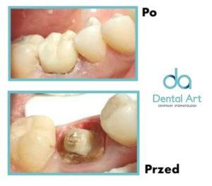 metamorfoza implanty stomatologia dental art