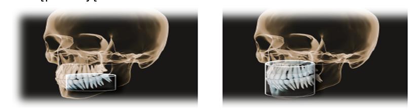 zdjecie-rentgen-pantomografem-Orthophos-XG-3D-rtg-orczyk-dentysta-jaworzno