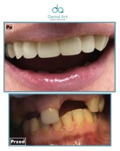 metamorfoza estetyczna dentysta implanty